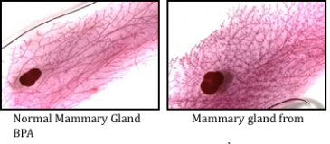 Normal mammary gland vs. mammary gland exposed to BPA